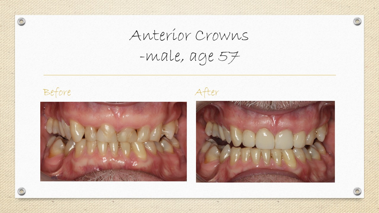 anterior dental crowns in cornwall
