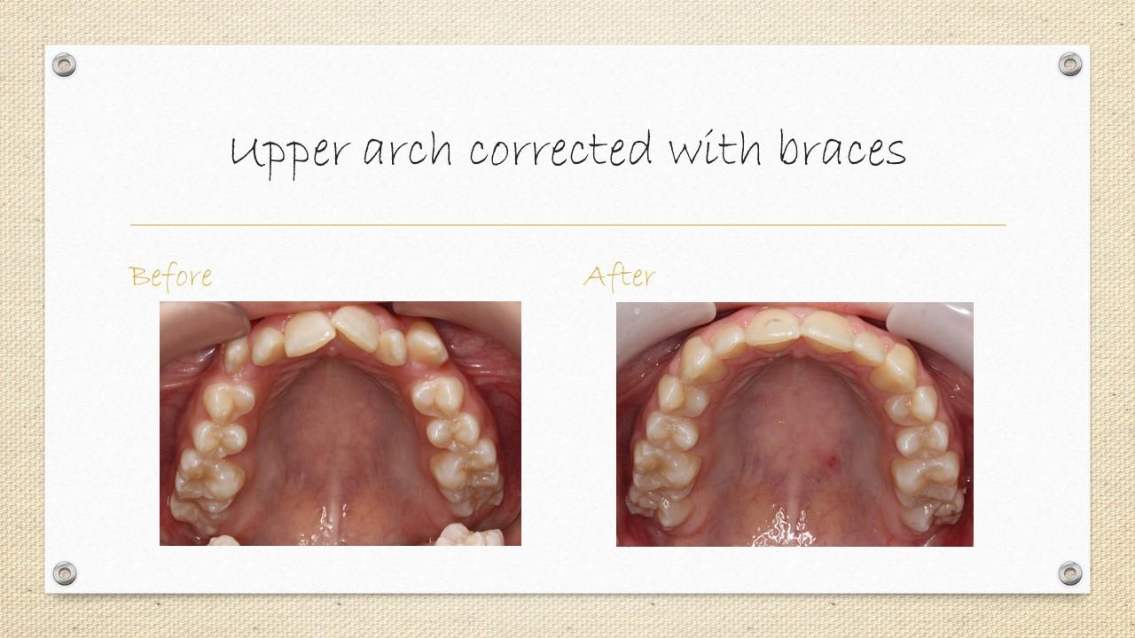 braces cornwall,ontario