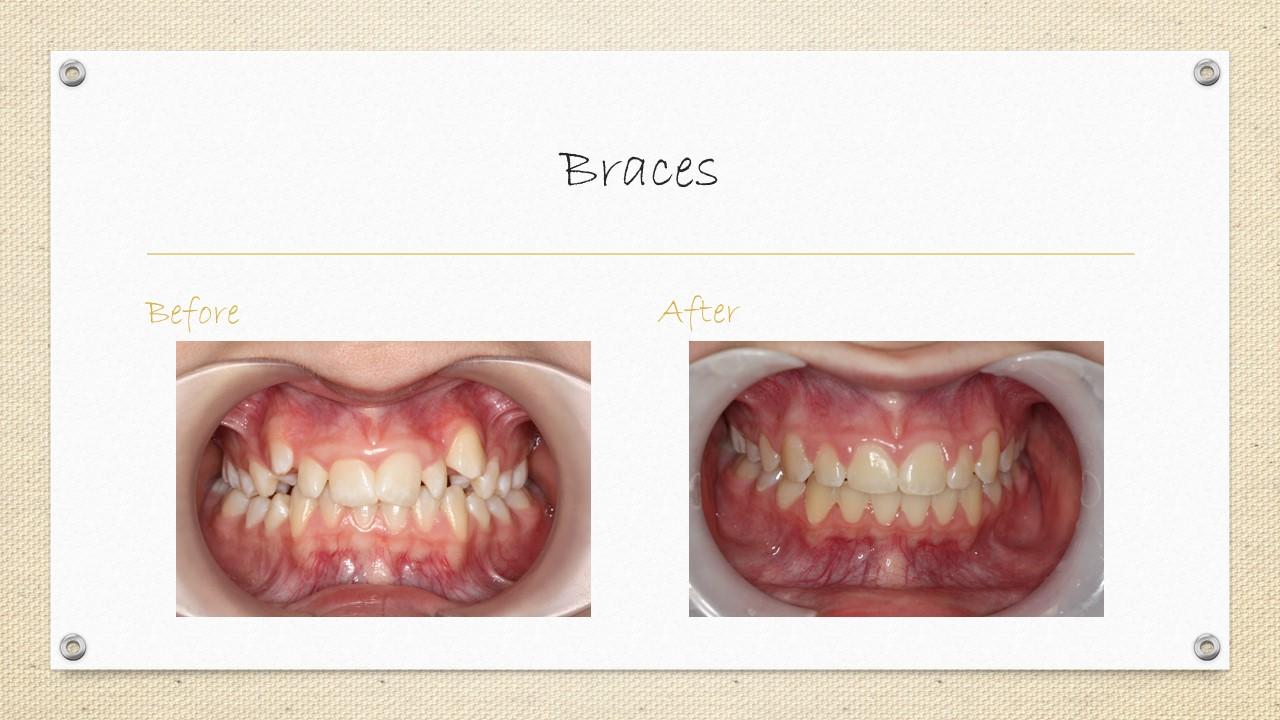 braces in cornwall,ontario