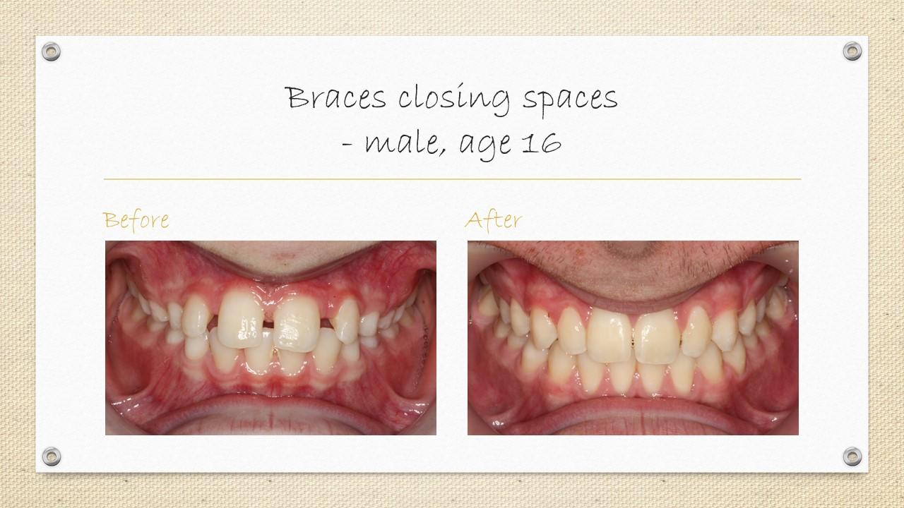 cornwall braces
