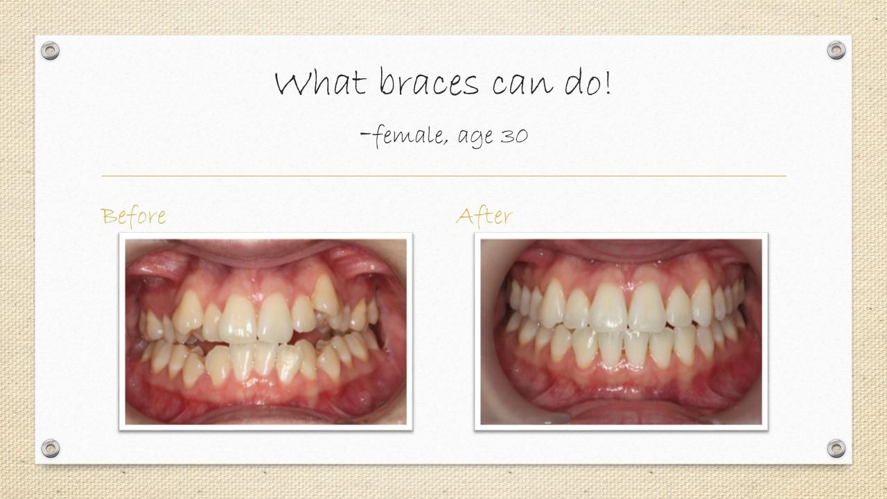cornwall dental braces