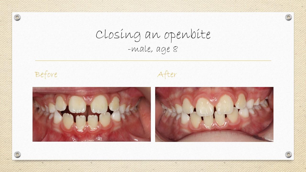 cornwall dentist openbite