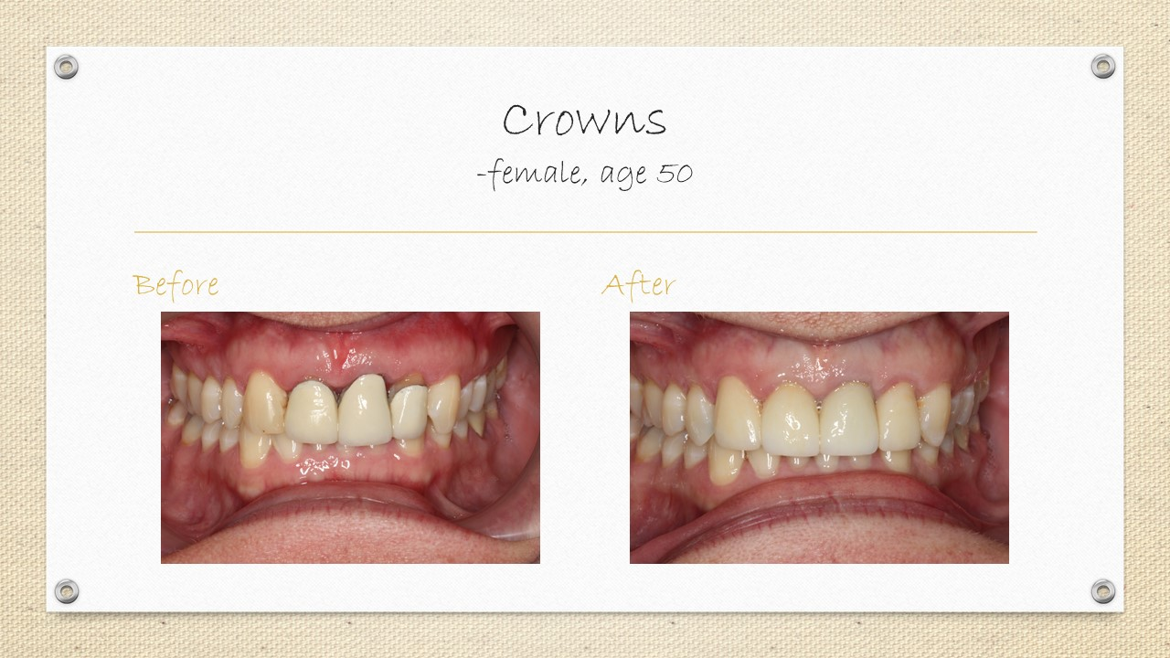 cornwall ontario braces