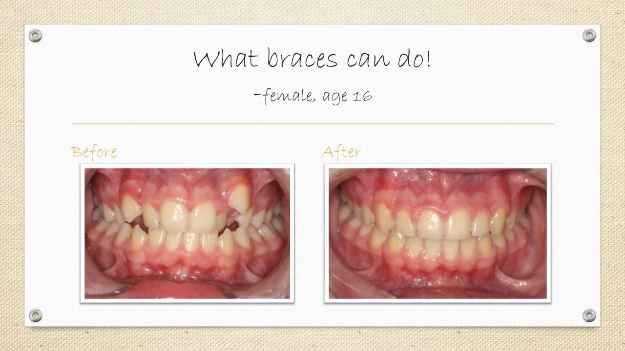 cornwall orthodontics