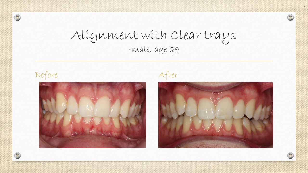 dental braces alignment cornwall