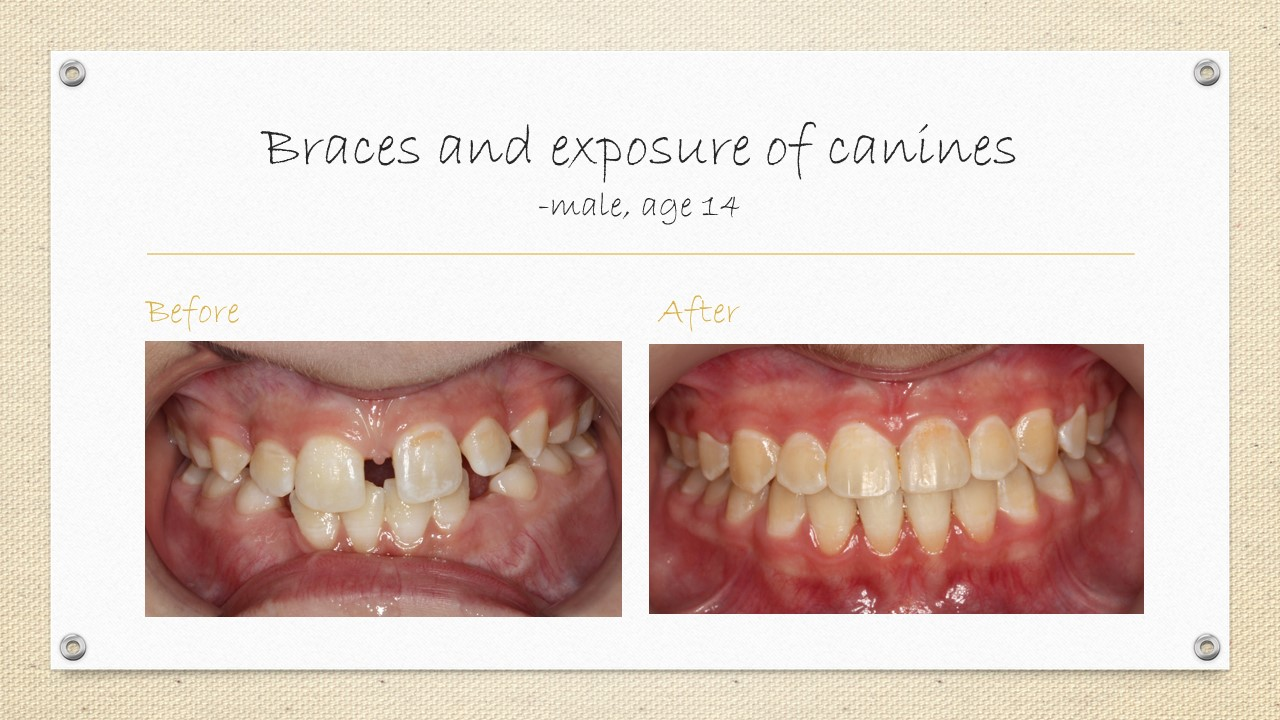 dental braces and canines