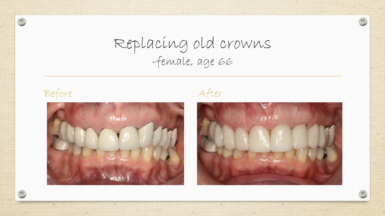 dental crown replacement cornwall
