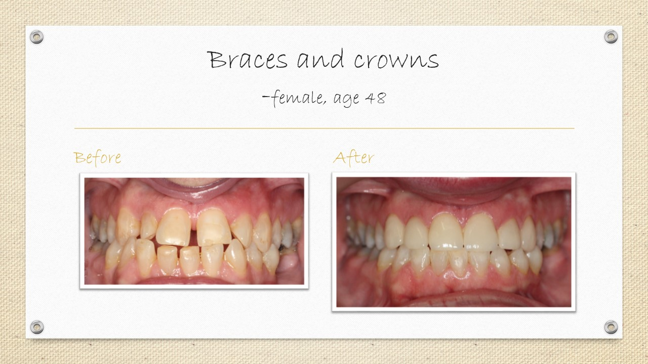 dental crowns and braces in cornwall