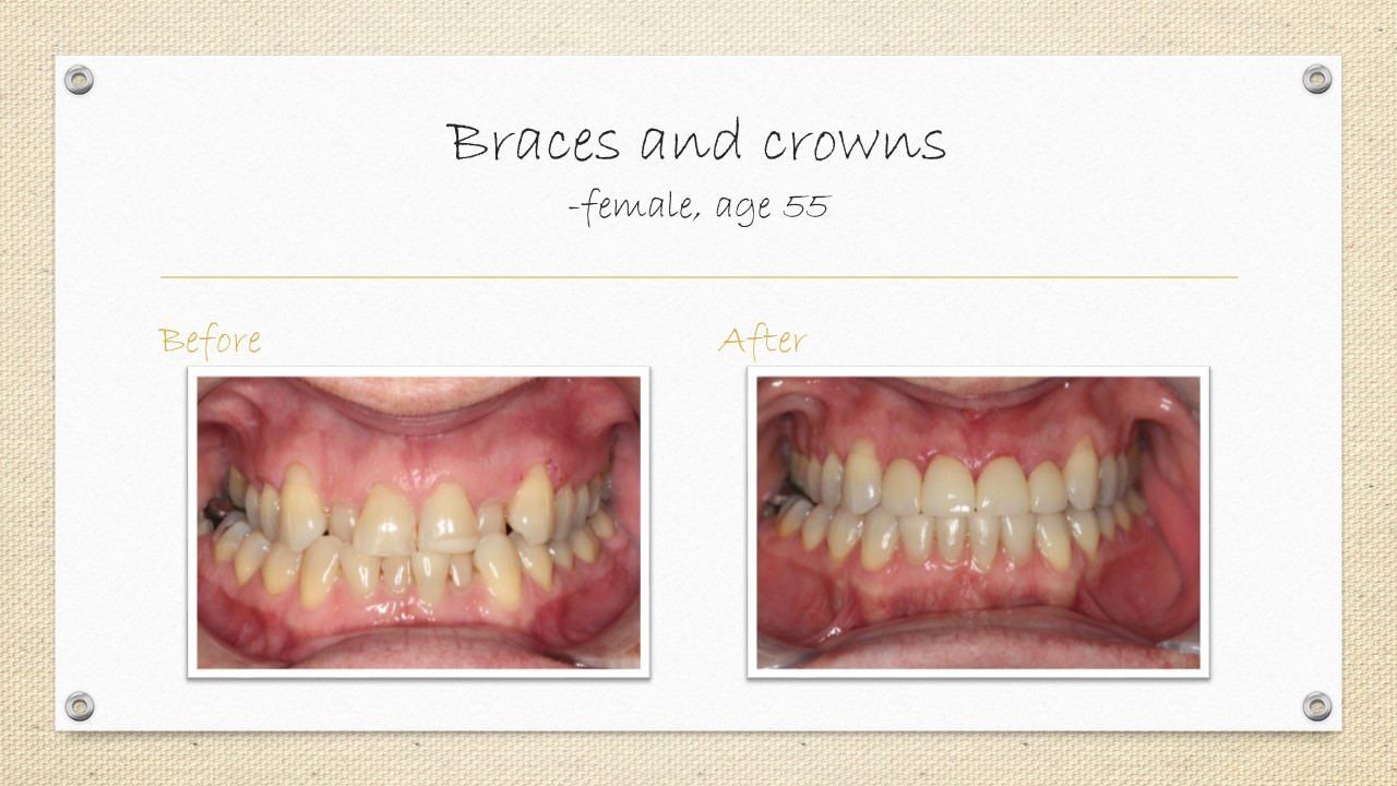dental crowns and bracess cornwall