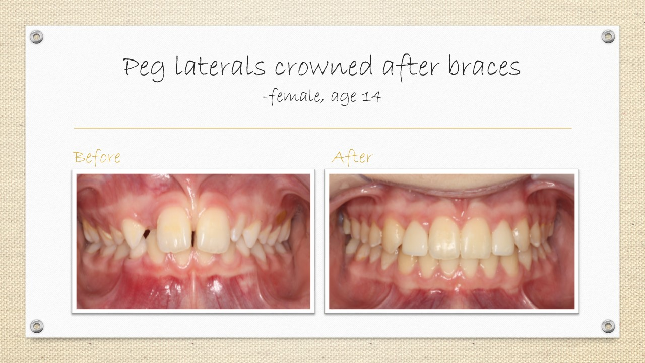 dental crowns braces cornwall