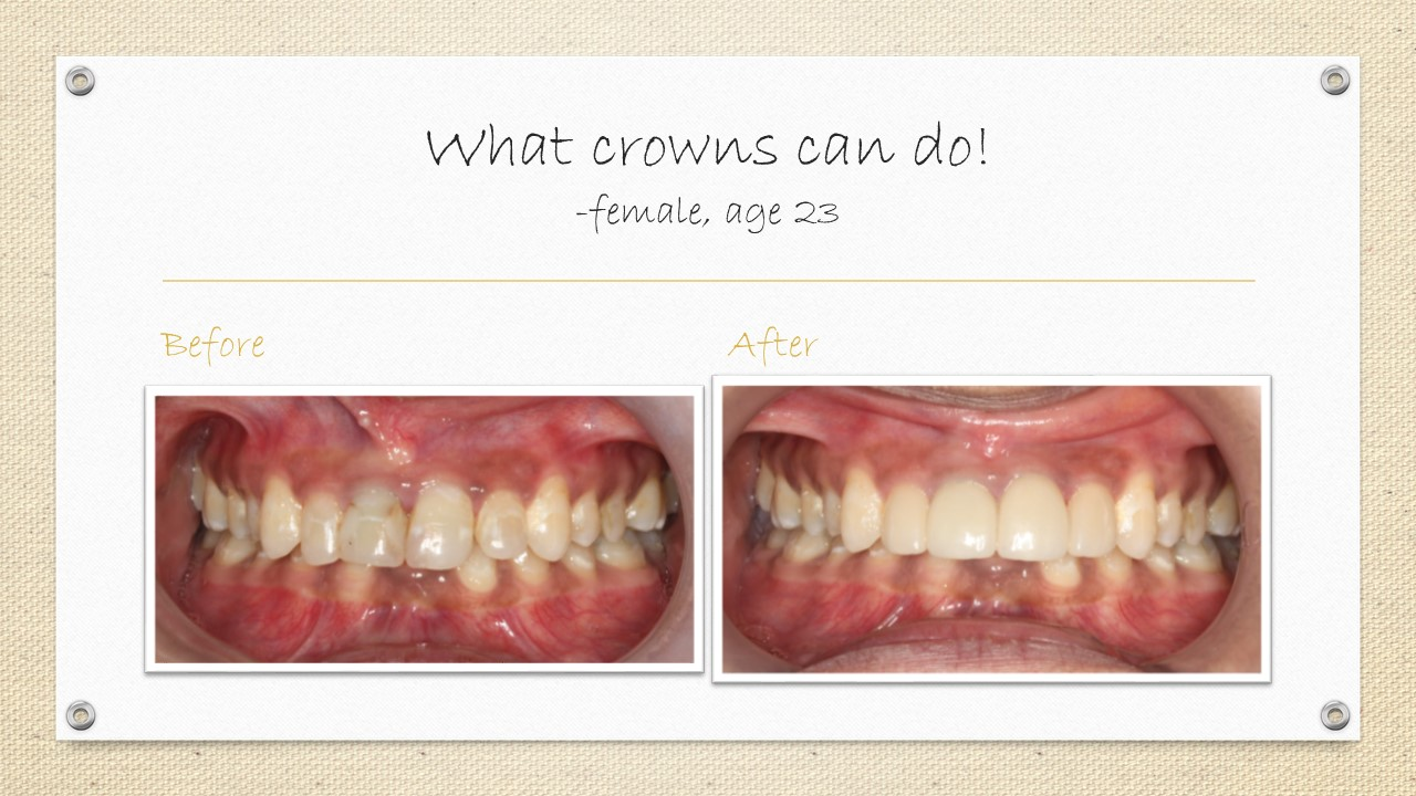 dental crowns cornwall
