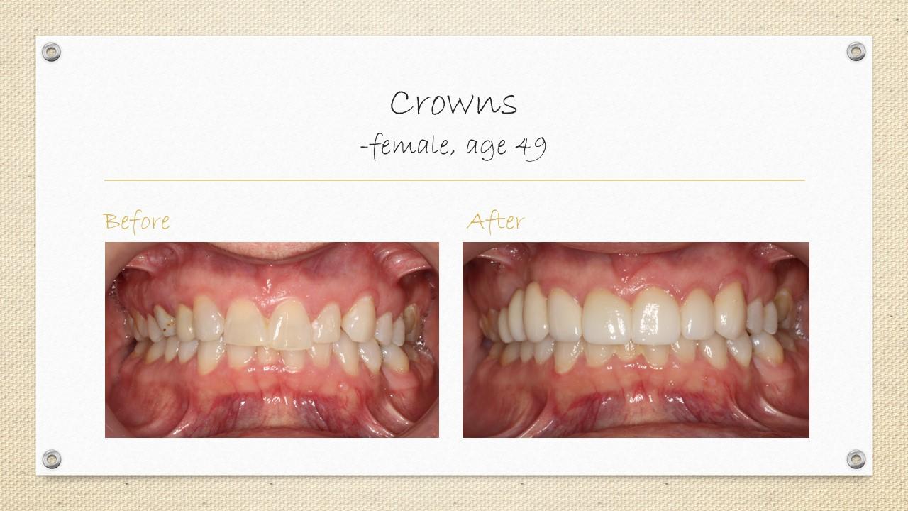 dental crowns in cornwall